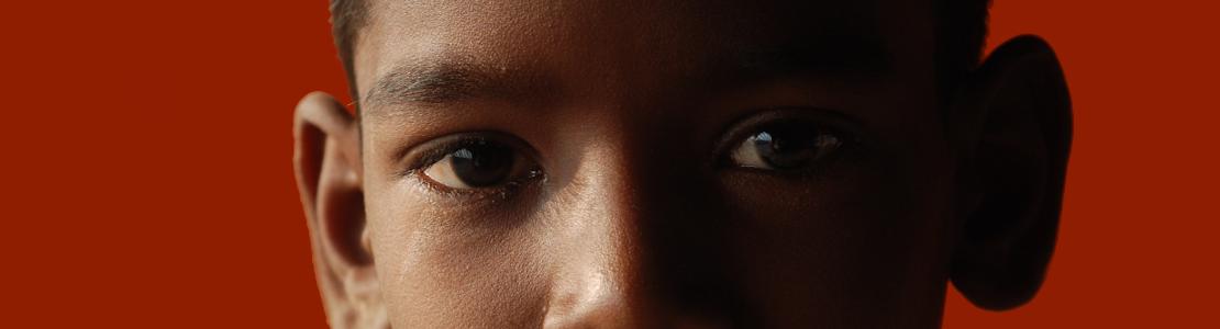 Niño negro con una oreja más separada de lo normal